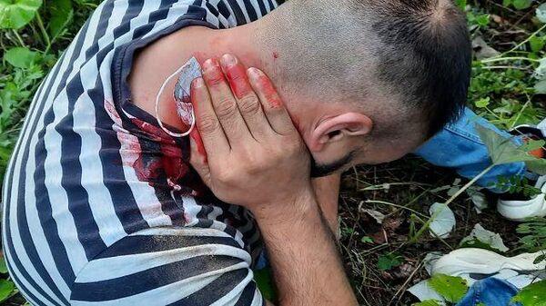 Раненые мигранты на границе - Sputnik Беларусь