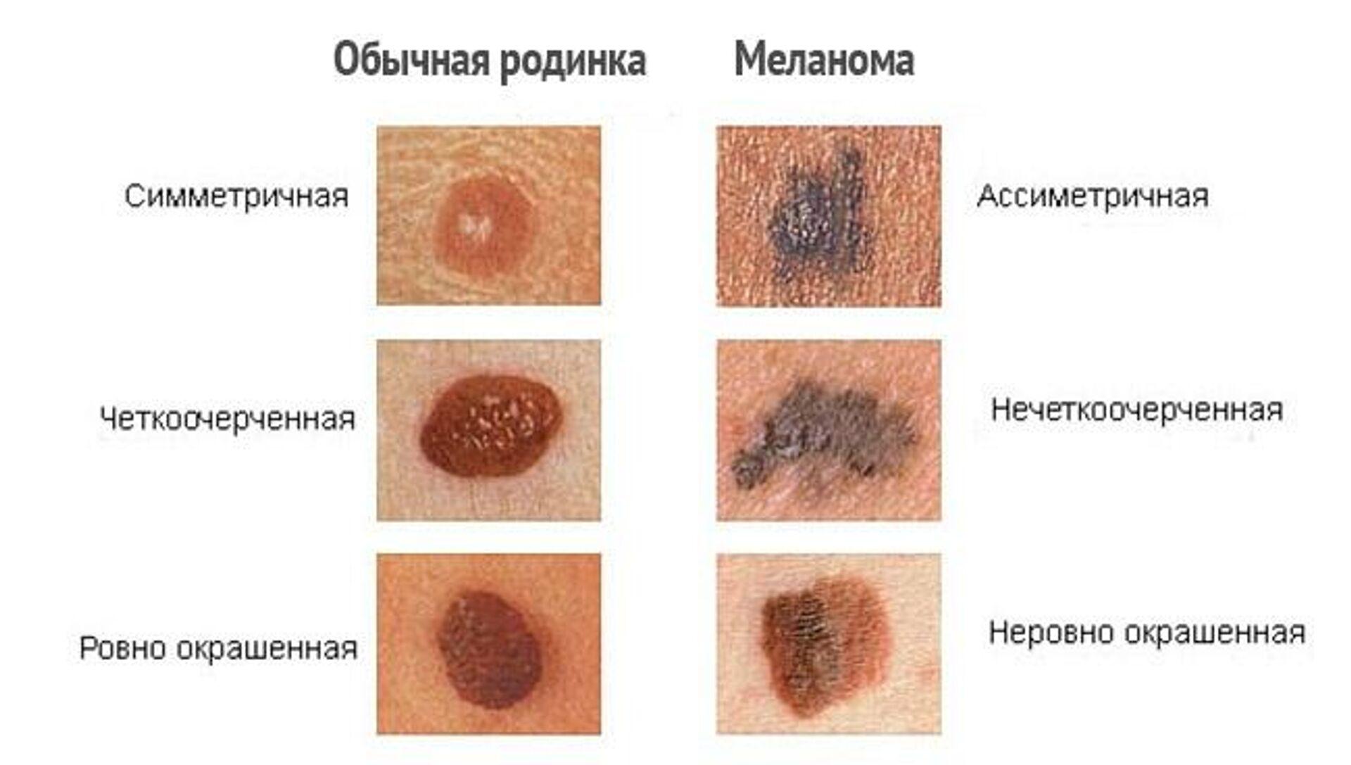 Родинка или рак: как распознать меланому? - Sputnik Беларусь, 1920, 27.09.2021