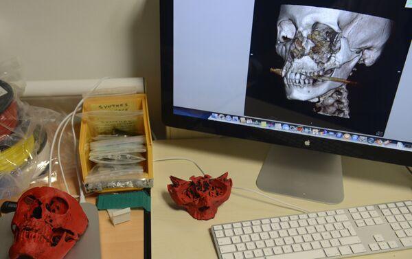 3D-принтер, используемый для воспроизведения черепа пациента - Sputnik Беларусь