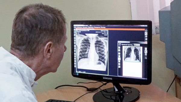 Урач вывучае здымак лёгкіх, архіўнае фота - Sputnik Беларусь