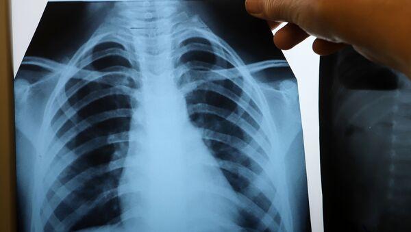 Врач с рентгеном легких в инфекционном корпусе, где лечат пациентов с COVID-19 - Sputnik Беларусь